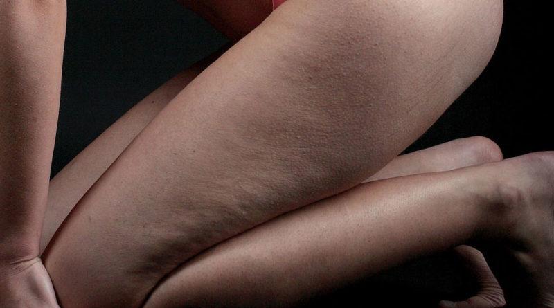 La dermatite di atopic da bambini è che