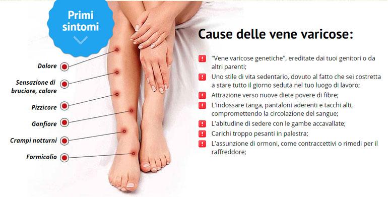 Le gambe di varicosity molto si gonfiano