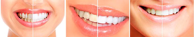 Effetto sbiancante di Dental White Strips