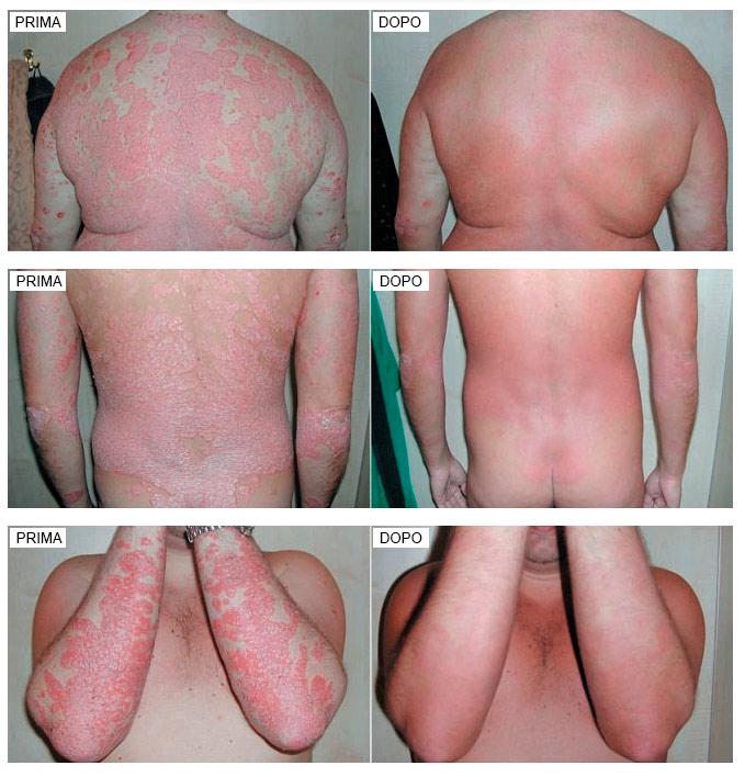 Psorimilk prima e dopo il trattamento