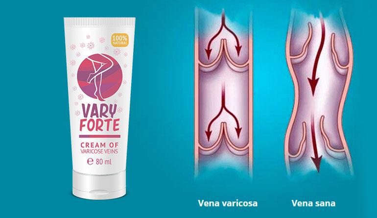 [Obrazek: varyforte-rimedio-naturale-vene-varicose...70x445.jpg]